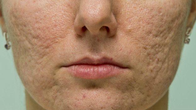 Espremer espinhas pode deixar cicatrizes e manchas na pele